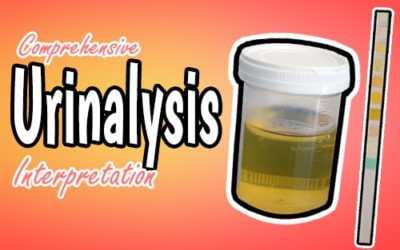 Comprehensive Urine Analysis Interpretation for Medical Professionals