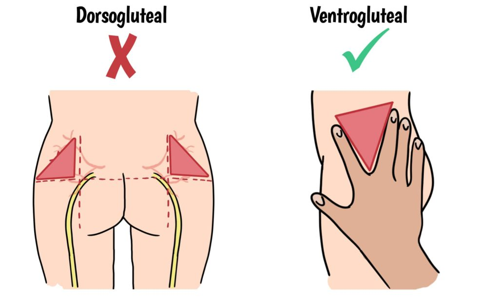 IM injections should be given in the ventrogluteal site to avoid complications