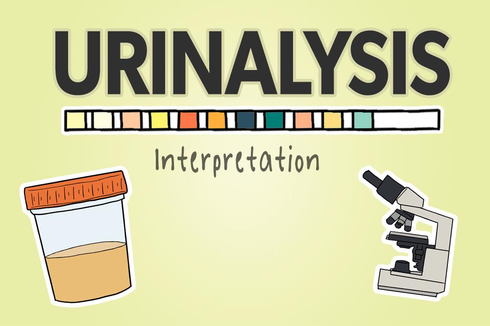 Urinalysis UA Interpretation: featured image