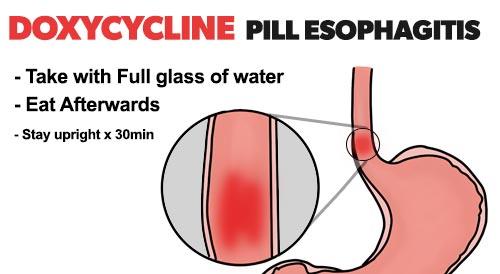 Adverse Drug Reaction - Doxycyline pill esophagitis