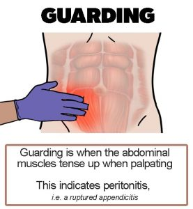 Appendicitis signs - Guarding