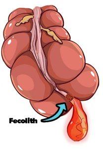 Fecolith appendicitis