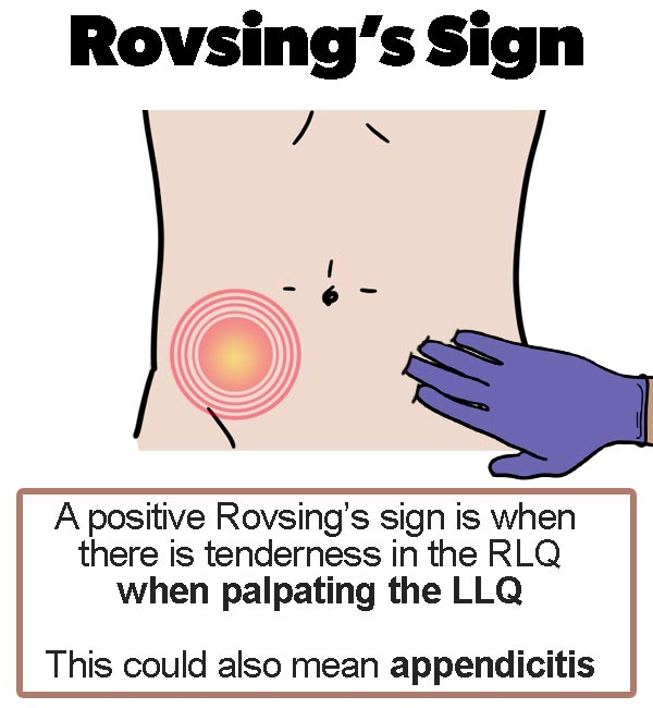 Appendicitis signs - Rovsings