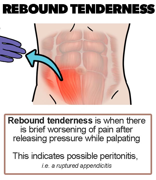 Appendicitis signs - Rebound