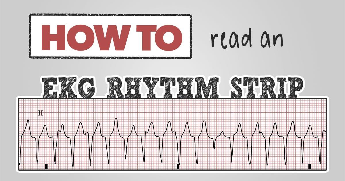 How to read an EKG Rhythm Strip - FB Share