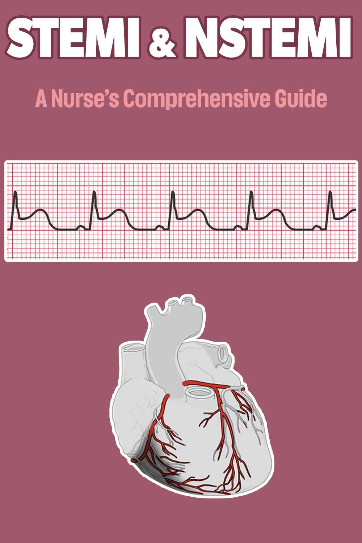 How to read an EKG Rhythm Strip - Pin Share