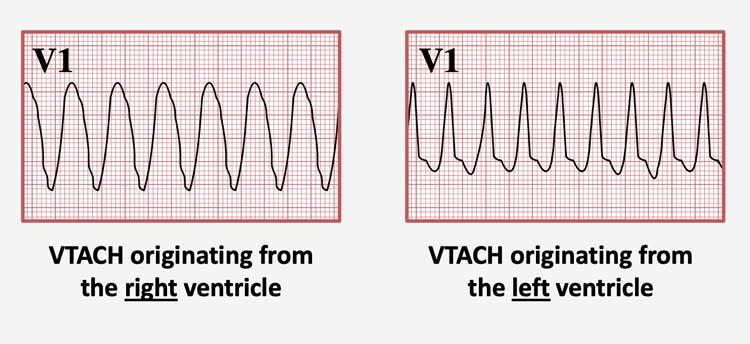 Torsades De Pointes is a polymorphic VTACH that occurs due to QT prolongation