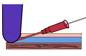 Many IV catheters will bleed if you do not place pressure over the catheter