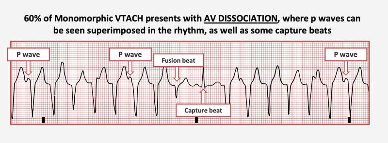 AV Dissociation is found in 60% of monomoprhic VTACH, with visible p waves superimposed on the rhythm, as well as occasional fusion and capture beats