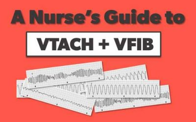 VTACH + VFIB | A Nurse's Guide to Ventricular Arrhythmias
