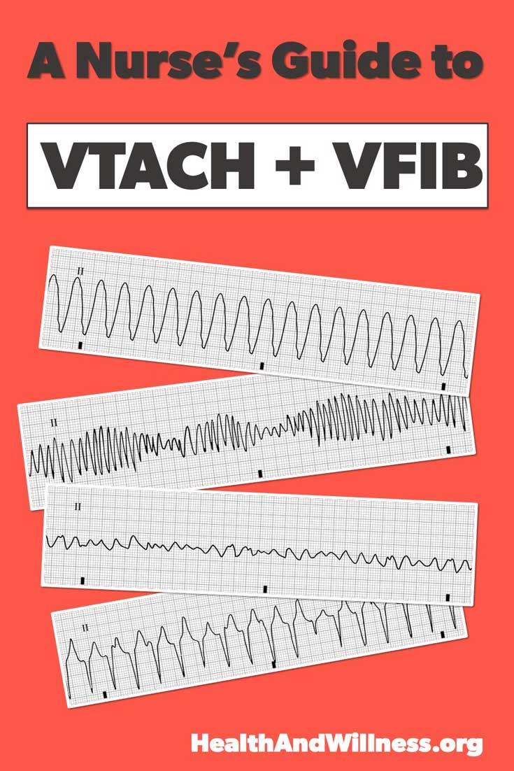 Check out this nurse's guide to ventricular arrhythmias (VFIB + VTACH)